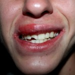 bien débuter - les dents